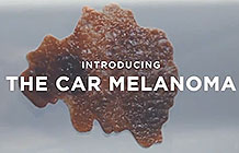 南非皮肤癌协会户外广告 车斑